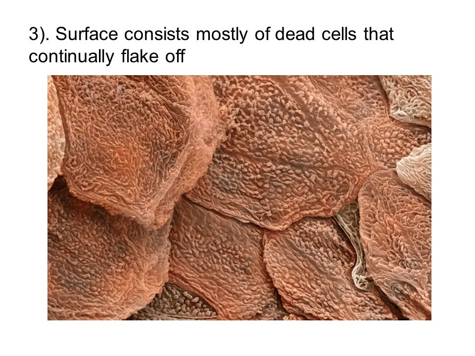 3). Surface consists mostly of dead cells that continually flake off