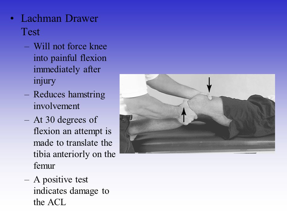 Lachman Drawer Test Will not force knee into painful flexion immediately after injury. Reduces hamstring involvement.