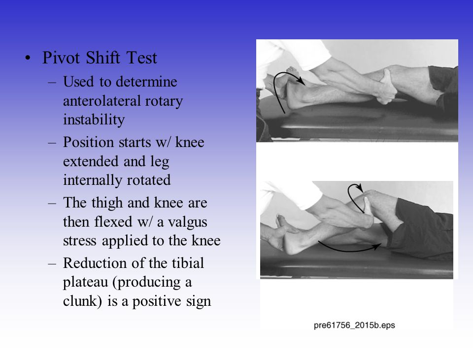 Pivot Shift Test Used to determine anterolateral rotary instability