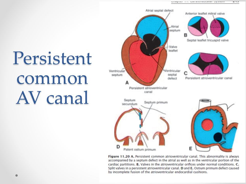 Persistent common AV canal
