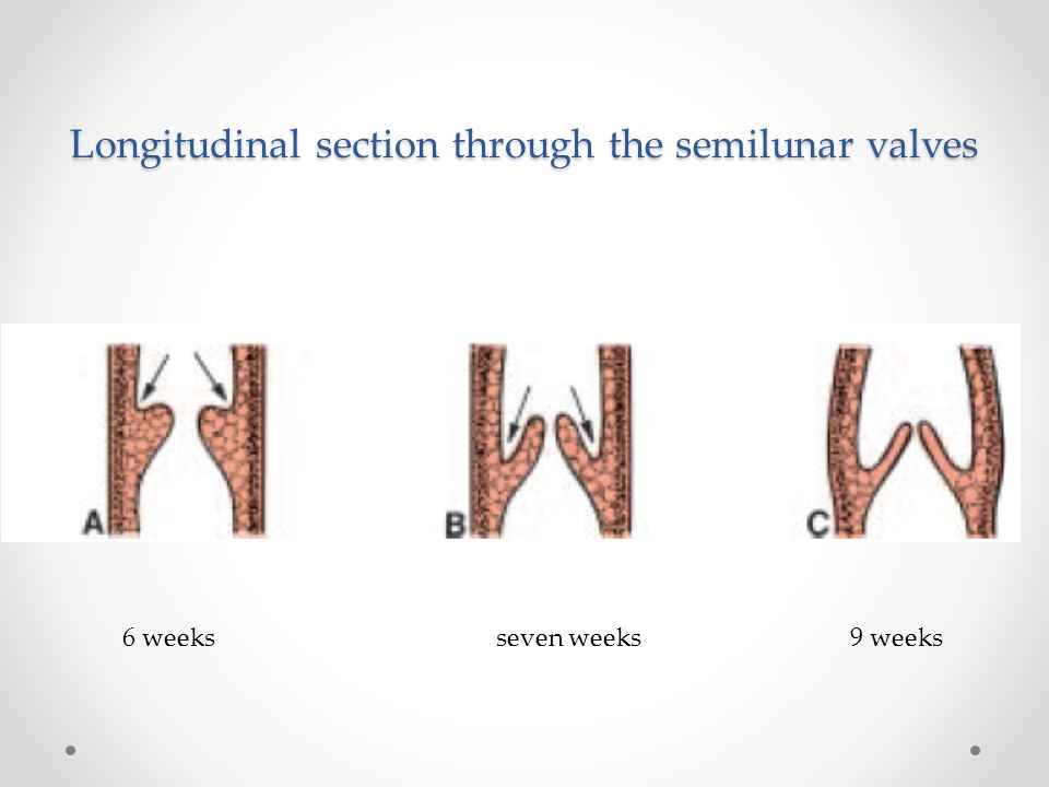 Longitudinal section through the semilunar valves