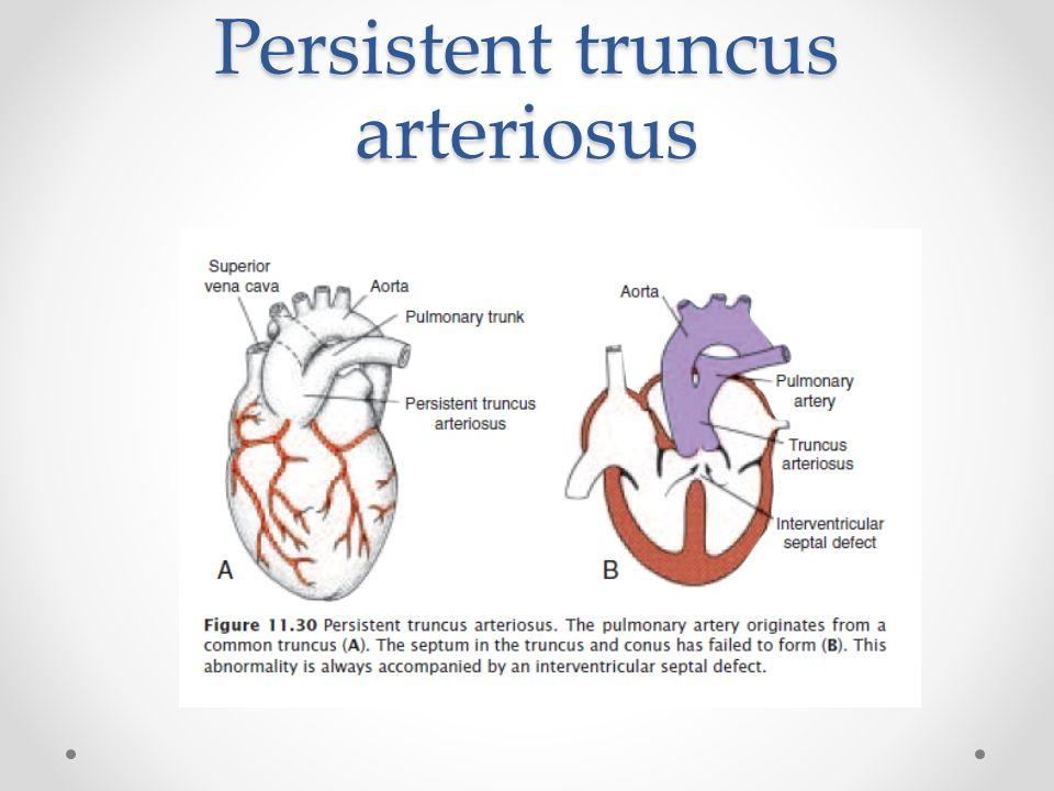 Persistent truncus arteriosus