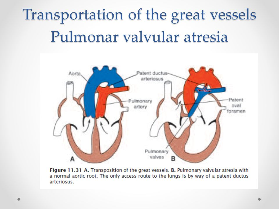 Transportation of the great vessels Pulmonar valvular atresia