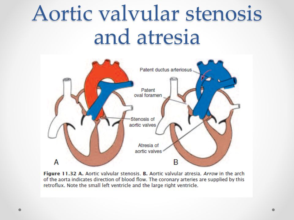 Aortic valvular stenosis and atresia