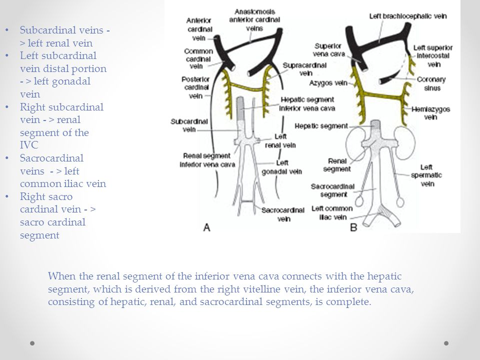 Subcardinal veins - > left renal vein