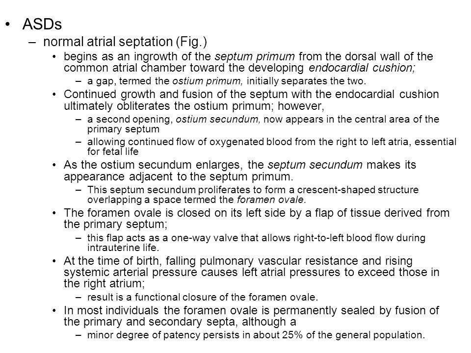ASDs normal atrial septation (Fig.)