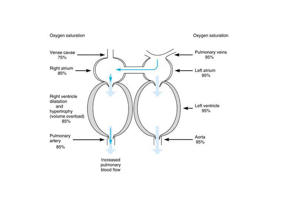 Pathophysiology of atrial septal defect