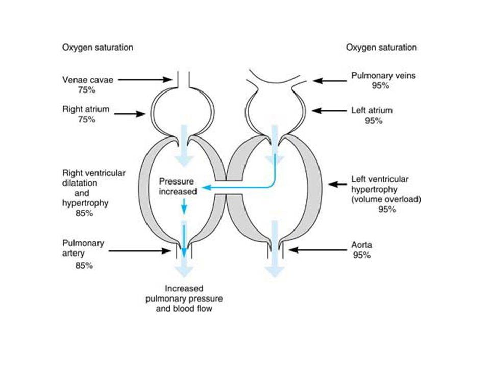 Pathophysiology of ventricular septal defect
