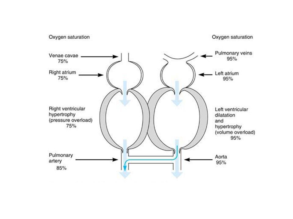 Pathophysiology of patent ductus arteriosus
