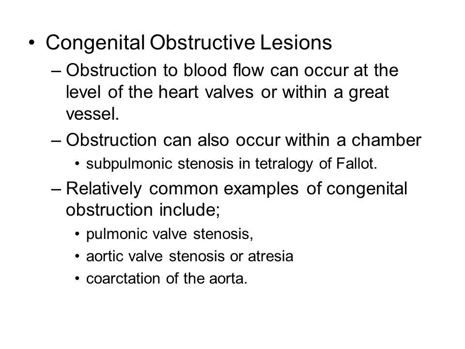 Congenital Obstructive Lesions