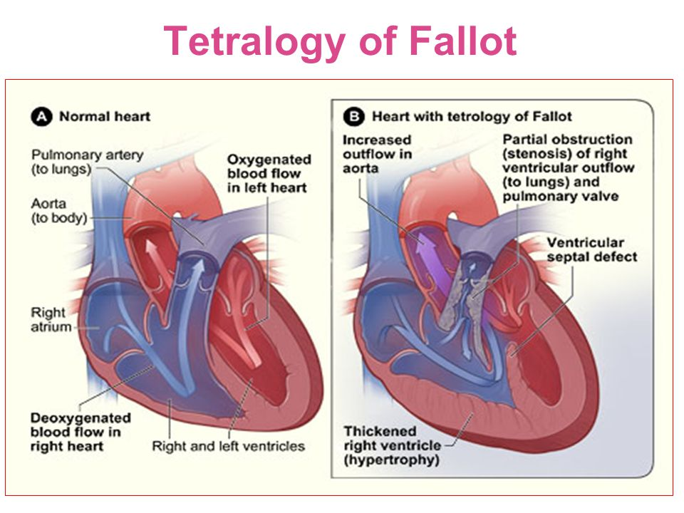 Tetralogy of Fallot 52