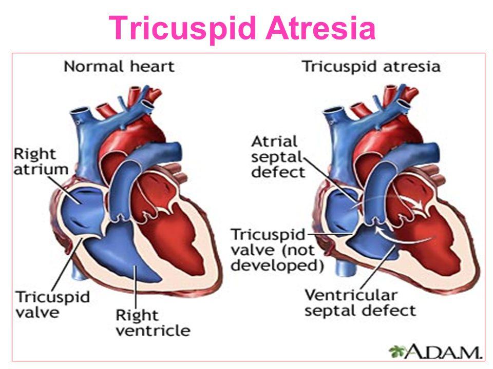 Tricuspid Atresia 54