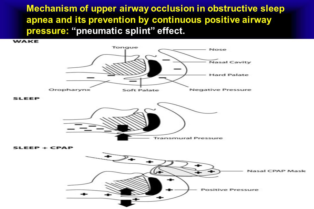 Mechanism of upper airway occlusion in obstructive sleep apnea and its prevention by continuous positive airway pressure: pneumatic splint effect.