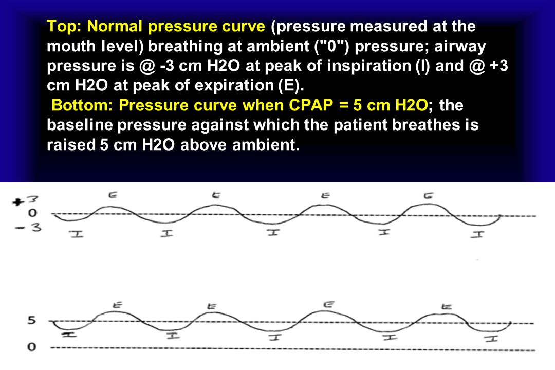 Top: Normal pressure curve (pressure measured at the mouth level) breathing at ambient ( 0 ) pressure; airway pressure is @ -3 cm H2O at peak of inspiration (I) and @ +3 cm H2O at peak of expiration (E).