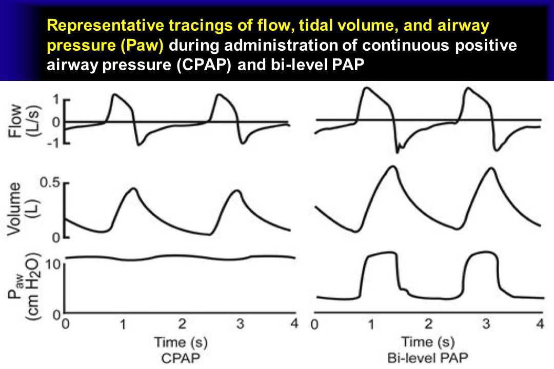 Representative tracings of flow, tidal volume, and airway pressure (Paw) during administration of continuous positive airway pressure (CPAP) and bi-level PAP