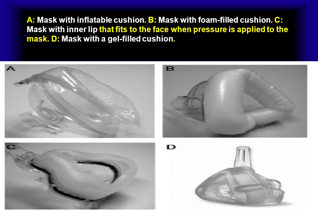 A: Mask with inflatable cushion. B: Mask with foam-filled cushion