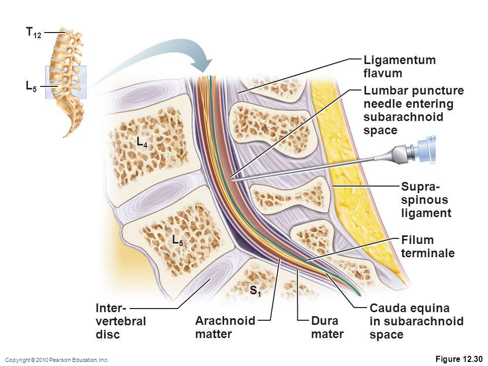 Ligamentum flavum Lumbar puncture needle entering subarachnoid space