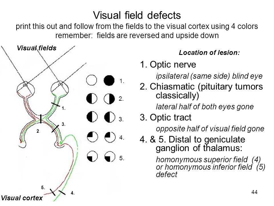 Visual field defects print this out and follow from the fields to the visual cortex using 4 colors remember: fields are reversed and upside down