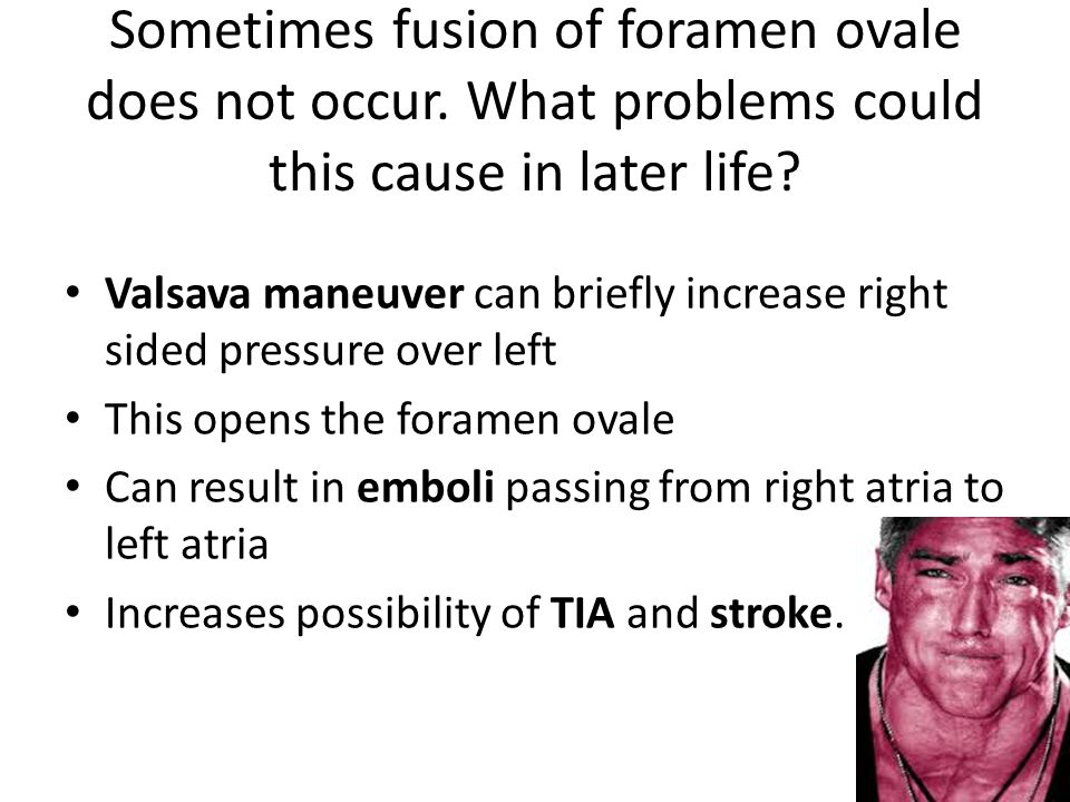 Sometimes fusion of foramen ovale does not occur
