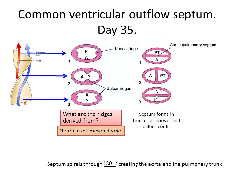 Common ventricular outflow septum. Day 35.