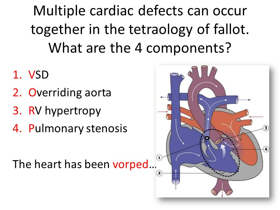 Multiple cardiac defects can occur together in the tetraology of fallot. What are the 4 components