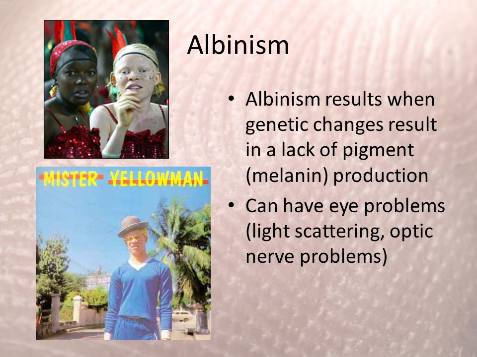 Albinism Albinism results when genetic changes result in a lack of pigment (melanin) production.