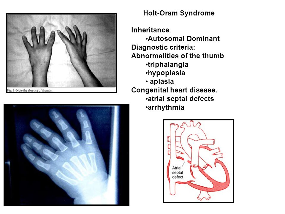 Holt-Oram Syndrome Inheritance. Autosomal Dominant. Diagnostic criteria: Abnormalities of the thumb.