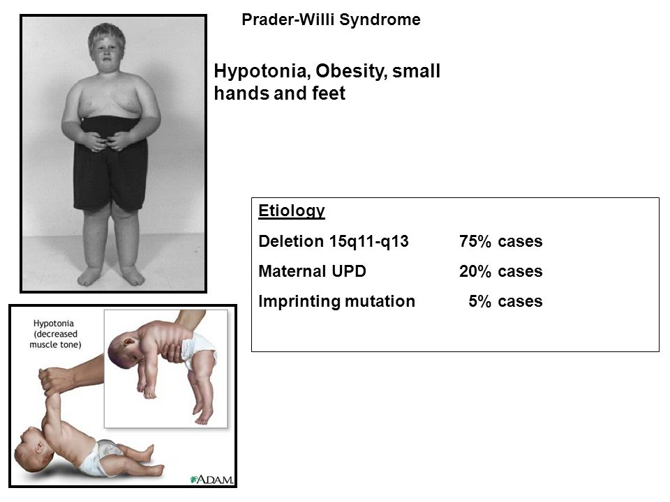 Hypotonia, Obesity, small hands and feet