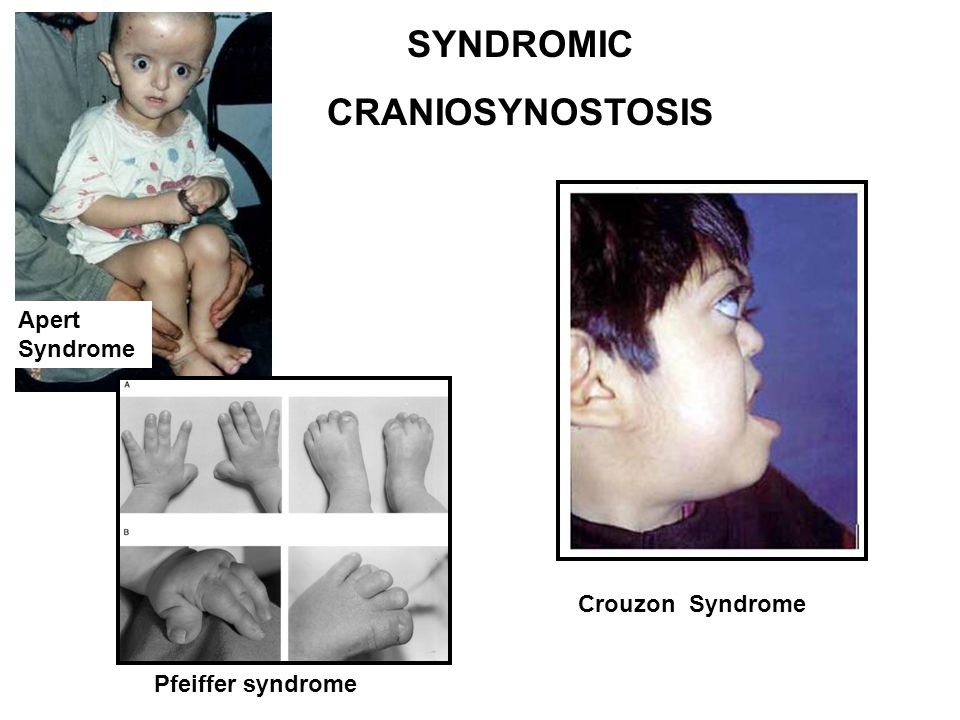 SYNDROMIC CRANIOSYNOSTOSIS