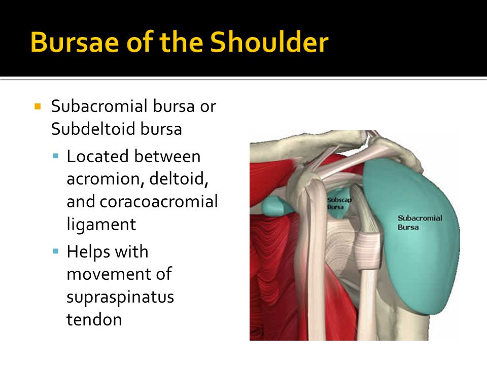 Bursae of the Shoulder Subacromial bursa or Subdeltoid bursa