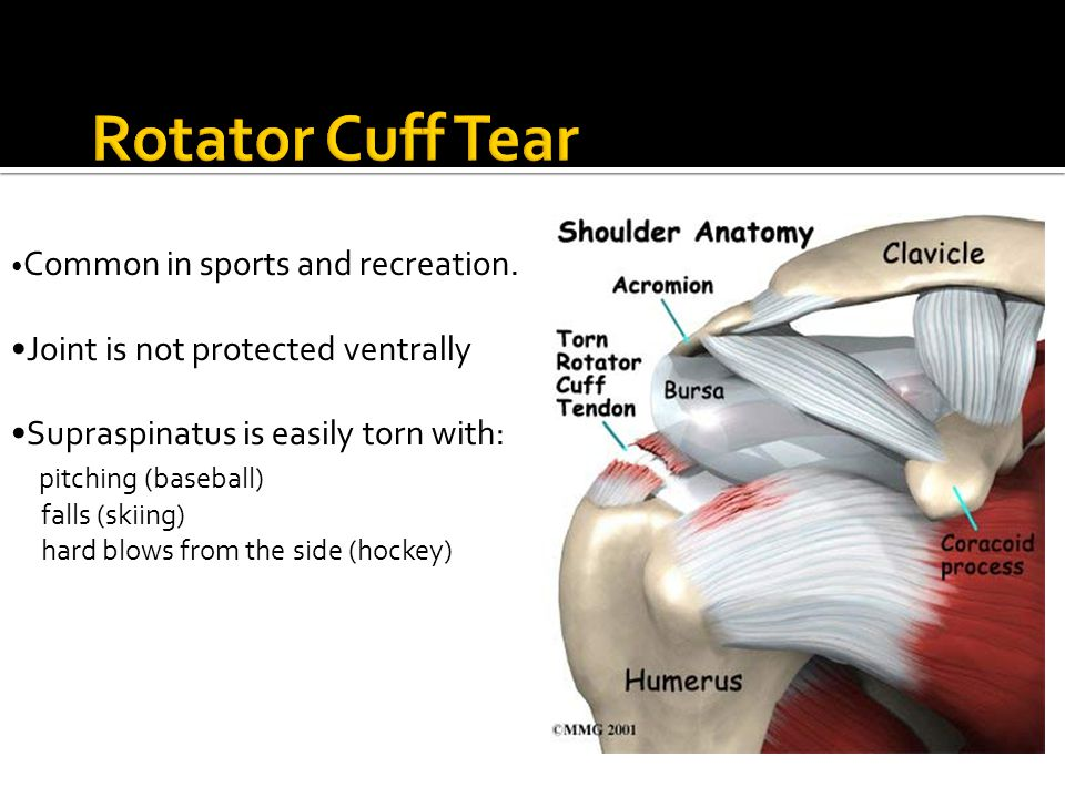 Rotator Cuff Tear Rotator Cuff Tear •Joint is not protected ventrally