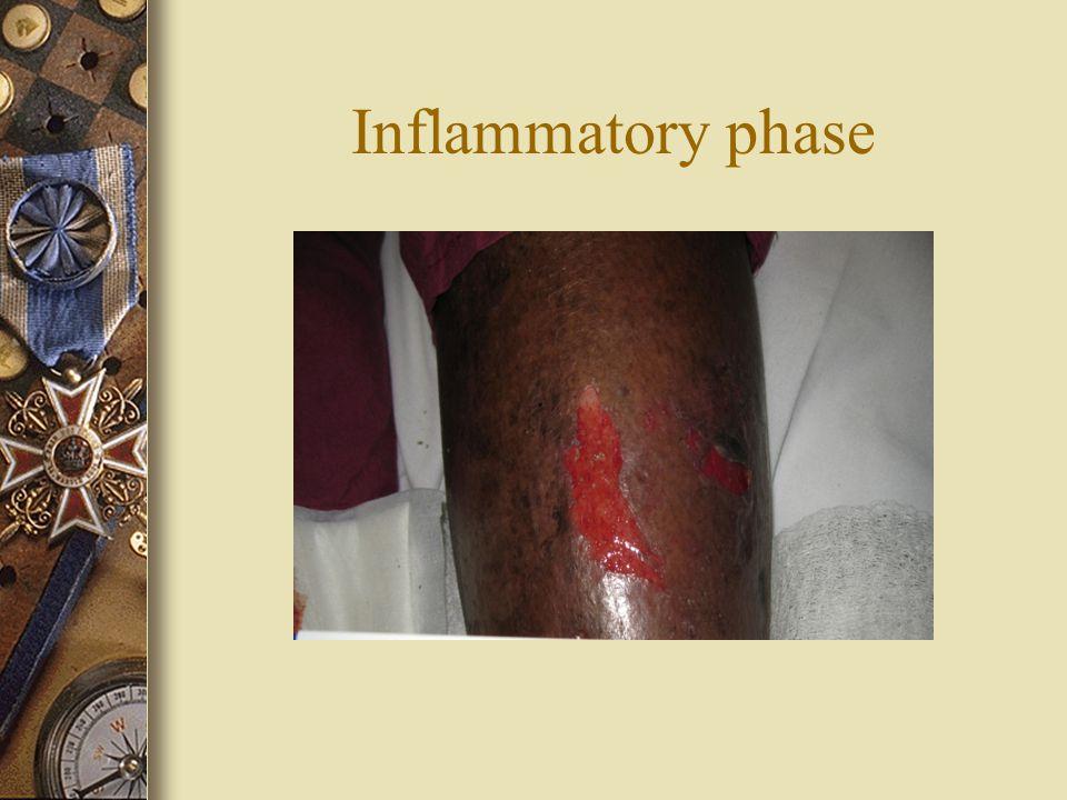 Inflammatory phase