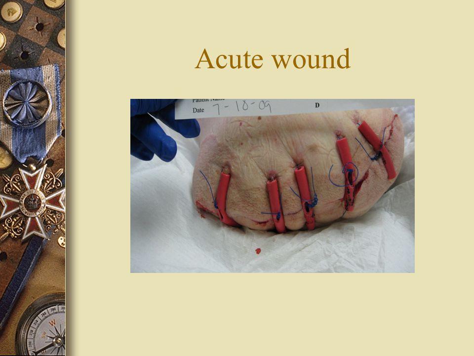 Acute wound