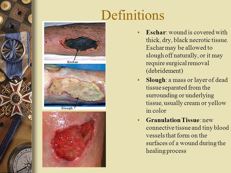 List Of Synonyms And Antonyms Of The Word Slough Wound