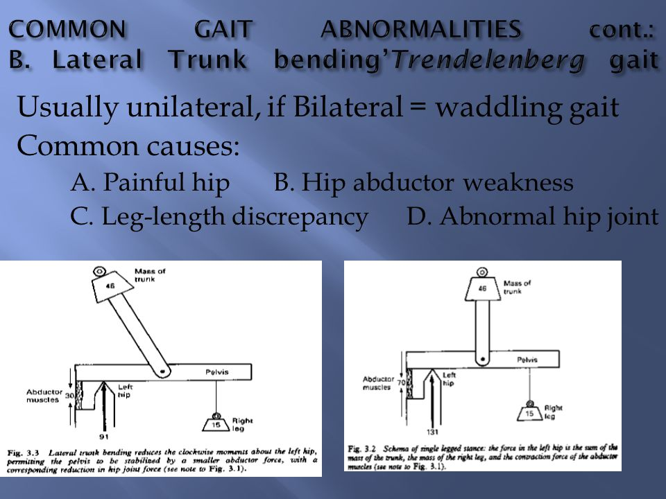 Usually unilateral, if Bilateral = waddling gait Common causes: