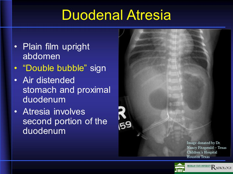Fetal Abnormalities and Anomalies - ppt video online download