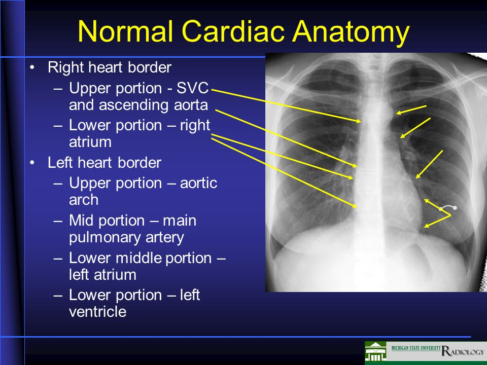 Normal Cardiac Anatomy