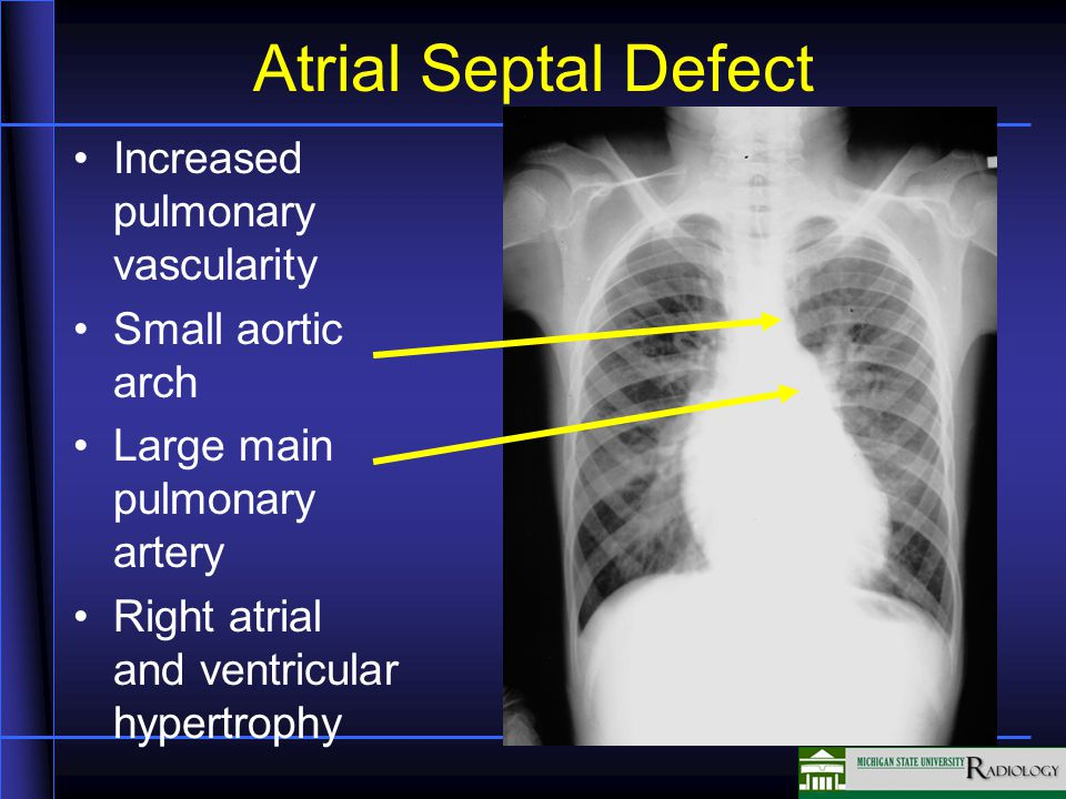 Atrial Septal Defect Increased pulmonary vascularity Small aortic arch