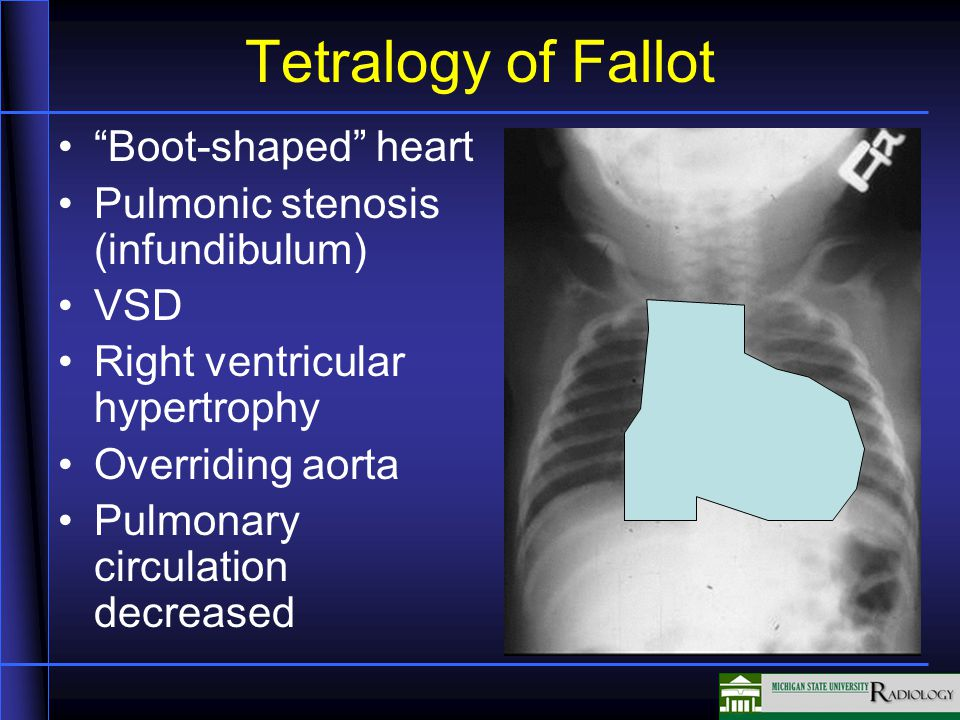 Tetralogy of Fallot Boot-shaped heart