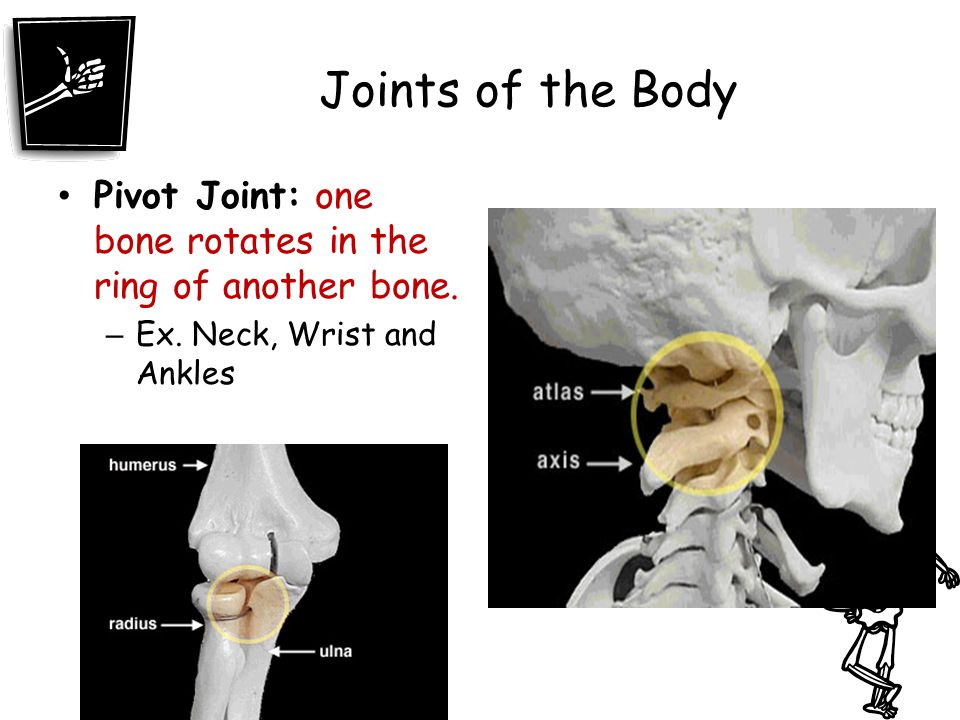 Joints of the Body Pivot Joint: one bone rotates in the ring of another bone.