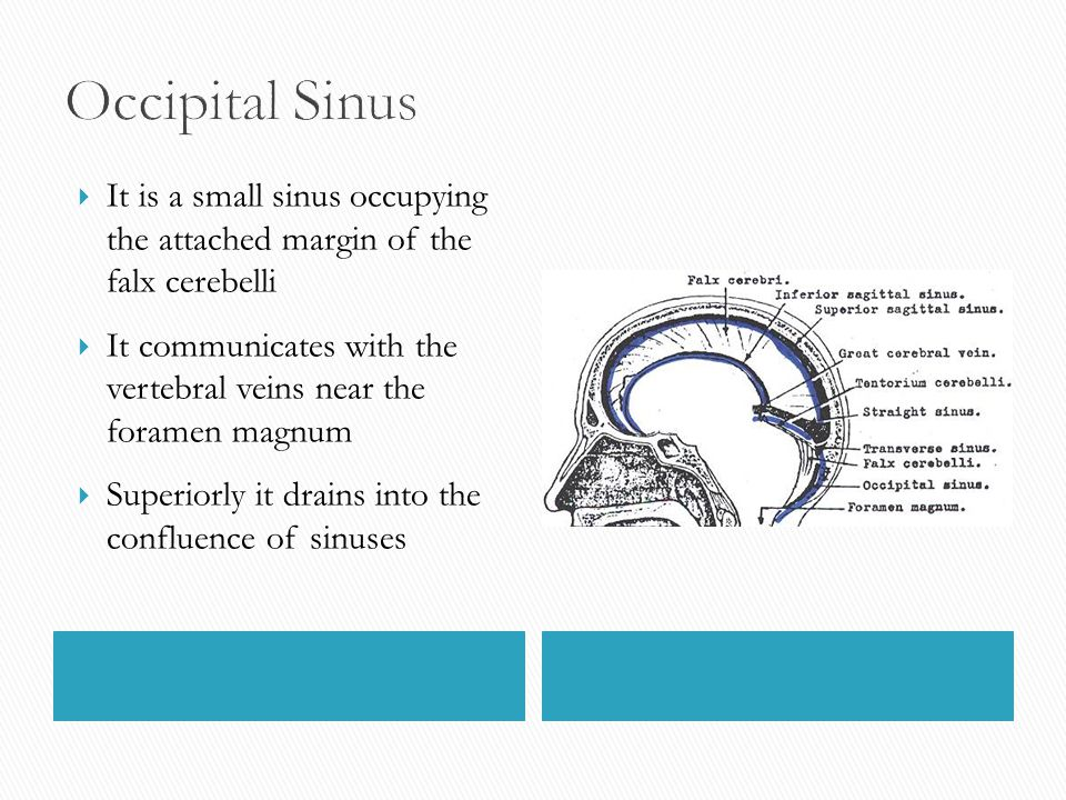 Occipital Sinus It is a small sinus occupying the attached margin of the falx cerebelli.