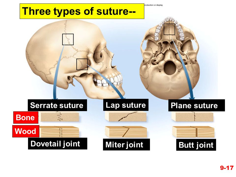 Three types of suture--
