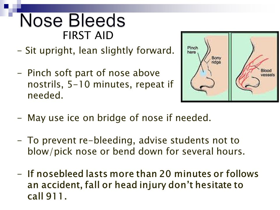 Nose Bleeds FIRST AID - Sit upright, lean slightly forward.