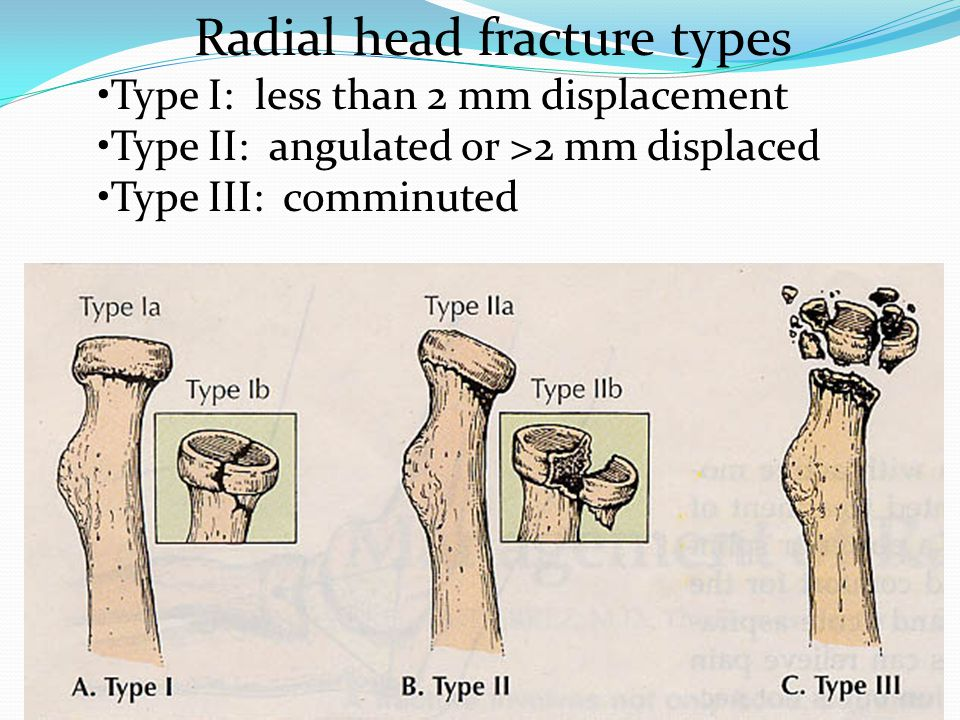 Radial head fracture types