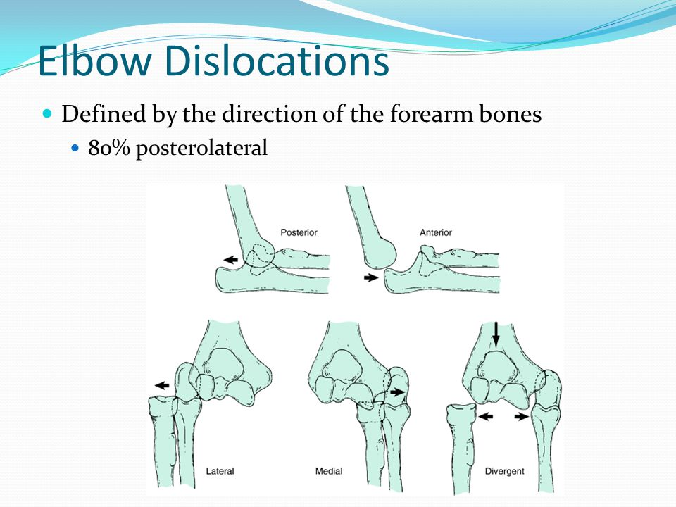 Elbow Dislocations Defined by the direction of the forearm bones