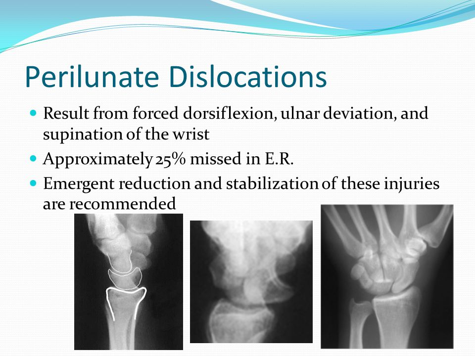 Perilunate Dislocations