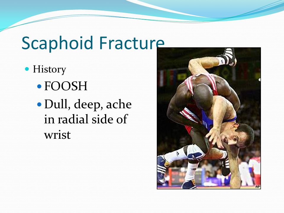Scaphoid Fracture FOOSH Dull, deep, ache in radial side of wrist