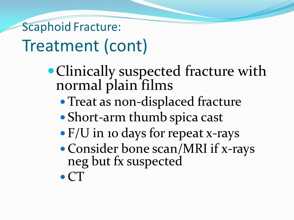 Scaphoid Fracture: Treatment (cont)