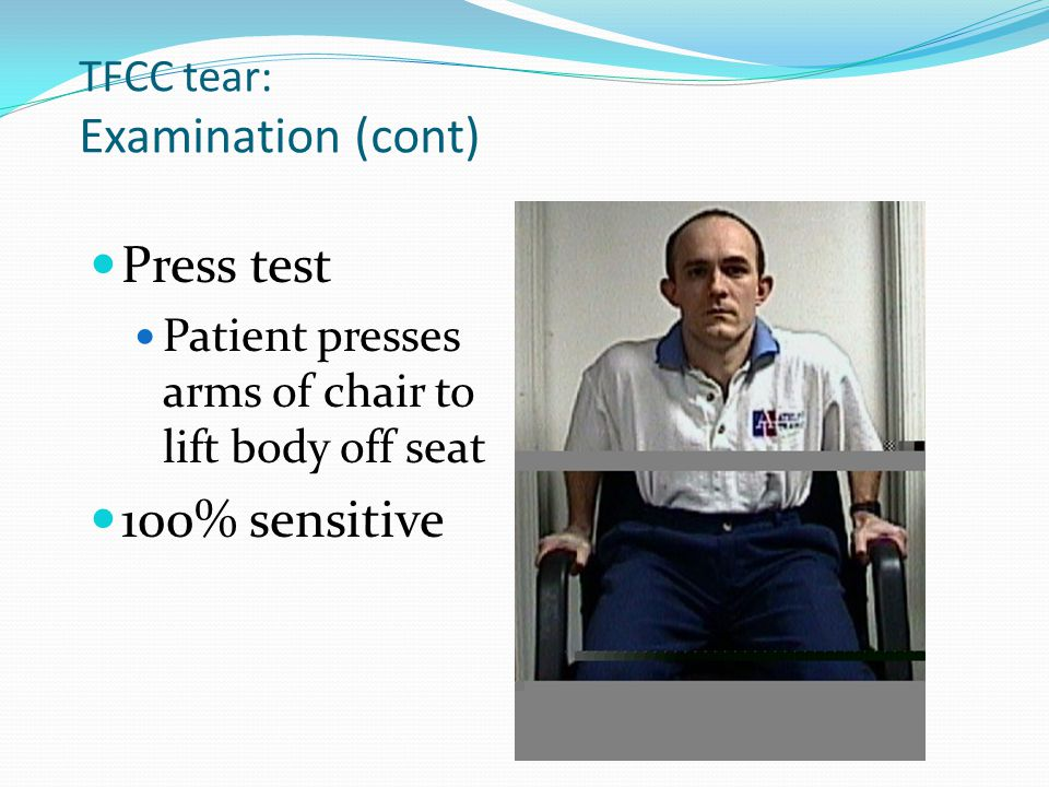 TFCC tear: Examination (cont)