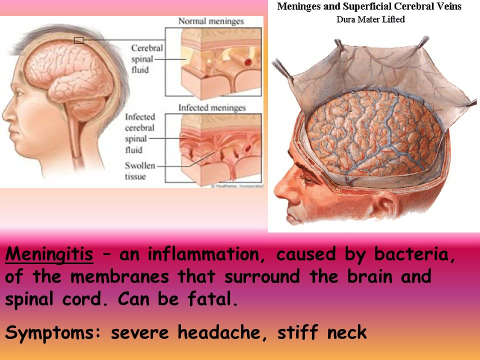 Meningitis – an inflammation, caused by bacteria, of the membranes that surround the brain and spinal cord. Can be fatal.